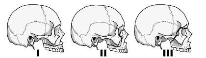 Orbital Floor Fracture Icd 9 by And Mandibular Fractures