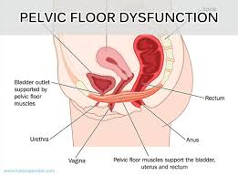 pelvic floor dysfunction constipation akioz com