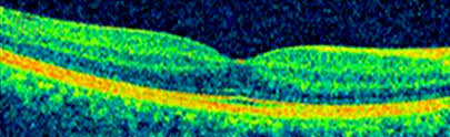 Evaluation Of The Central Macula In Commotio Retinae Not Associated With Other Types Traumatic Retinopathy