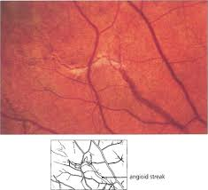 1621 Angioid Streaks Are Splits In Bruchs Membrane They Appear As Linear Fractures Extending From The Optic Disc And Ramifying Towards Periphery