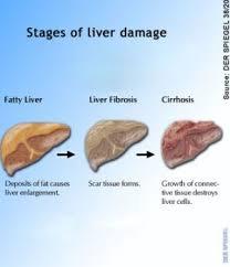 fatty liver cats hepatic lipidosis cat