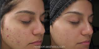 Pumpkin Enzyme Peel Before And After by Chemical Peels Obagi Pca Skin Vi Peel Newport Aesthetics Dr