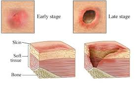 bed sores pictures causes symptoms signs prognosis