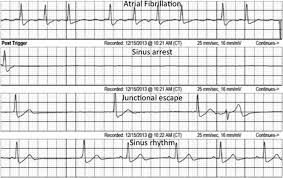 Sinus Node and Atrial Arrhythmias
