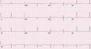 Junctional Bradycardia Rhythm ECG Example 2