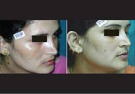 Woods Lamp Examination Melasma by A Comparative Study On Efficacy Of High And Low Fluence Q Switched