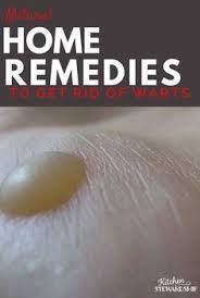 Warts home reme s can be simple natural and not even that