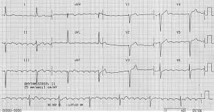 ECG features of digoxin toxicity LITFL ECG Library