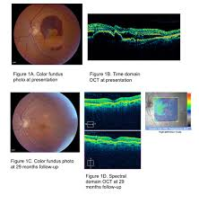 Patient 2 An 83 Year Old Man With A History Of Dry AMD In The Right Eye And Wet Left Was Referred For One Month Persistent