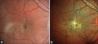 Figure 1 A Standard Color Fundus Photograph B Multicolor Image The Enhances Epiretinal Membrane With Retinal Folds
