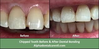 Cosmetic Dentistry in St Louis Teeth Whitening Veneers Alpha