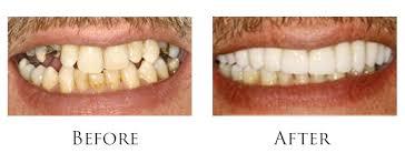 Get Cosmetic Veneers For Teeth & Dental Bonding At Home