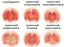The treatment of pharyngitis in pregnancy