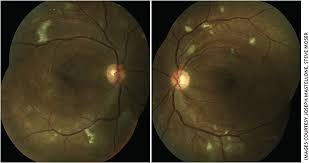 Figures 1a And 1b Color Fundus Photo OU Demonstrating Bilateral Macular Ischemia With Microaneurysms