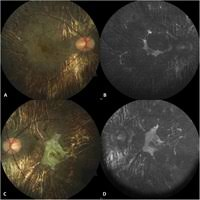 PHENOTYPING CHOROIDEREMIA AND ITS CARRIER STATE WITH MULTIMO Retinal Cases And Brief Reports