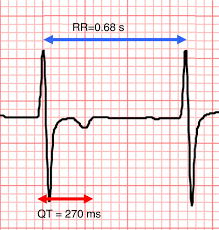 rr interval normal range qt presenting as syncope how is