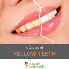 What Causes Yellow Teeth and What to Do About It