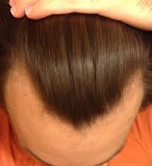 it actually works 8 months on finasteride and minoxidil foam