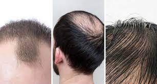 Kepala Lelaki Senang Botak
