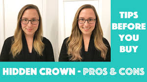 Hidden Crown Daydream Review | My Advice Hidden Crown Hair Extension Reviewpros Cons Final Recommendations Exteions Clip Ins Toppers Beauty Tagged Hidden Crown Hair Exteions 36buckscom Kym Loves Posts Facebook Lauren Ashtyn Topper Review Coupon Code Allisons Journey Home Does It Work Hidden Crown Hair Exteions Promo Code Print Sale