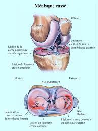 douleur interieur genou course a pied douleur au genou et gonflement page 3 kinesitherapie24