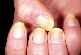 Infected Fingernail Bed by The Bloomin U0027 Couch What Your Nails Say About Your Health