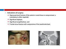 Fracture Orbital Floor Treatment by Orbital Fractures The Role Of An Ophthalmologist