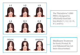 Minoxidil Shedding Phase Pictures by Theradome Laser Hair Growth Faq Theradome Laser Helmet