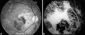 Choroideremia Associated With Subretinal Neovascular Membrane