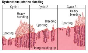 Uterine Lining Shedding Meaning by Dysfunctional Uterine Bleeding Guide Causes Symptoms And