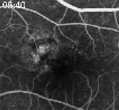 Viewing Retinal Disease With The Aid Of OCT Angiography