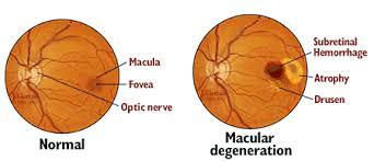 Eye Terminology Subretinal Hemorrhage