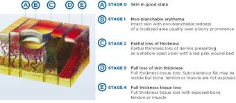 syst am our solutions to prevent pressure sores