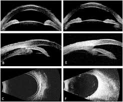 Echography Of Ciliochoroidal Effusion Syndrome Ultrasound Biomicroscopy UBM Showed Shallow Anterior Chamber A And Rotation The Ciliary Body