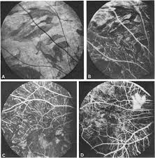 Fluorescein Angiography Of The Hereditary Choroidal Dystrophies
