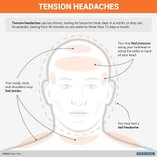 20 Inspirational Headache Location Chart Causes