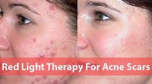 Infrared Lamp Therapy Side Effects by Light Therapy For Acne Scars
