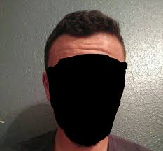 Propecia Shedding 2 Weeks by My Finasteride Journey Album On Imgur