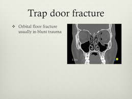 Fracture Orbital Floor Treatment by Oral And Maxillofacial Trauma In Sports Ppt Video Online Download