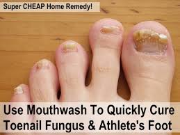 Use Mouthwash To Cure Toenail Fungus & Athlete s Foot