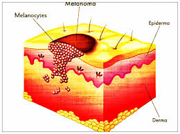 Skin Cancer and Tanning Beds Facts