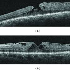 Optical Coherence Tomography Of A Lamellar Macular Hole And B An