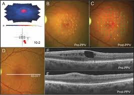 Case 3 Test Results Of An Epiretinal Membrane ERM Induced Central Scotoma Prior