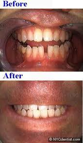 Bonding gaps between teeth with high end cosmetic dentistry