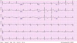 Ectopic Atrial Bradycardia ECG Criteria and Examples