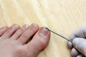 Toenail Separated From Nail Bed by Triad Foot U0026 Ankle Center