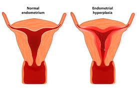 endometrial hyperplasia familydoctor org