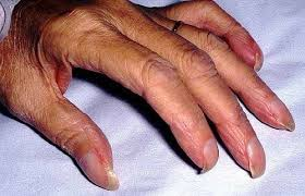 Infected Fingernail Bed nail disorders and abnormalities medical information patient