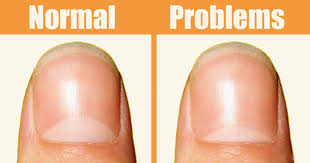 Receding Nail Bed by The Moons On Your Nails Can Warn You About These 13 Health Problems