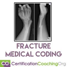 Orbital Floor Fracture Icd 9 by Help On Fracture Medical Coding U2013 Video